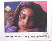 NOT MY CHOICE ... COCHLEAR IMPLANTS